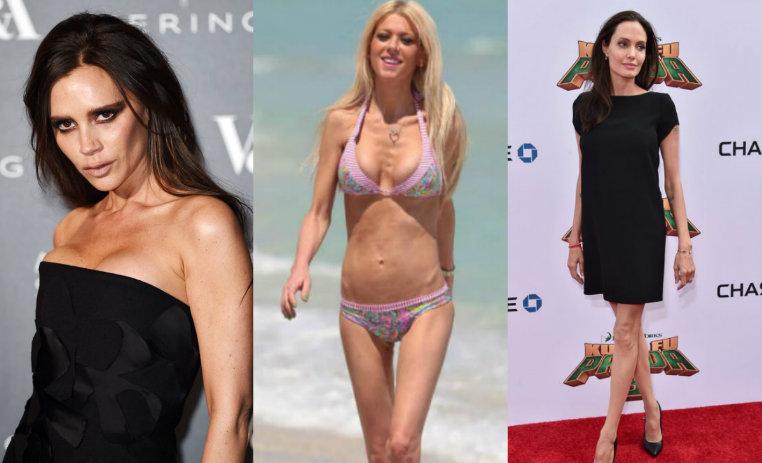 10 famosas que impactaron con su extrema delgadez de10