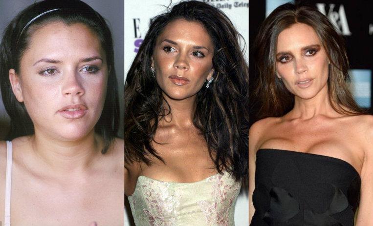 Victoria Beckham 10 Fotos De Su Sorprendente Transformación De10