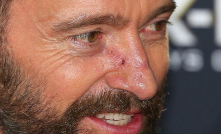 hugh jackman, cancer