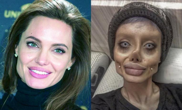 Obsesión por parecerse a Angelina Jolie, la convierte en 'zombie' viral (Fotos)
